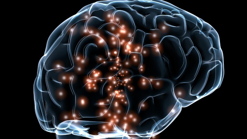 L'implant cérébral qui a anéanti la Tourette