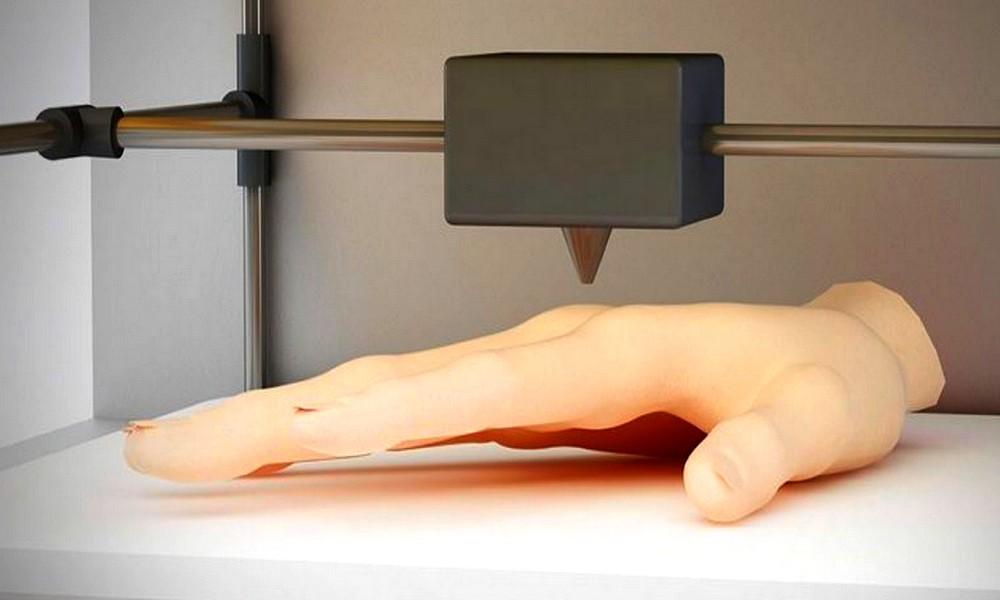 De la peau humaine imprimée en 3D pour faciliter les greffes