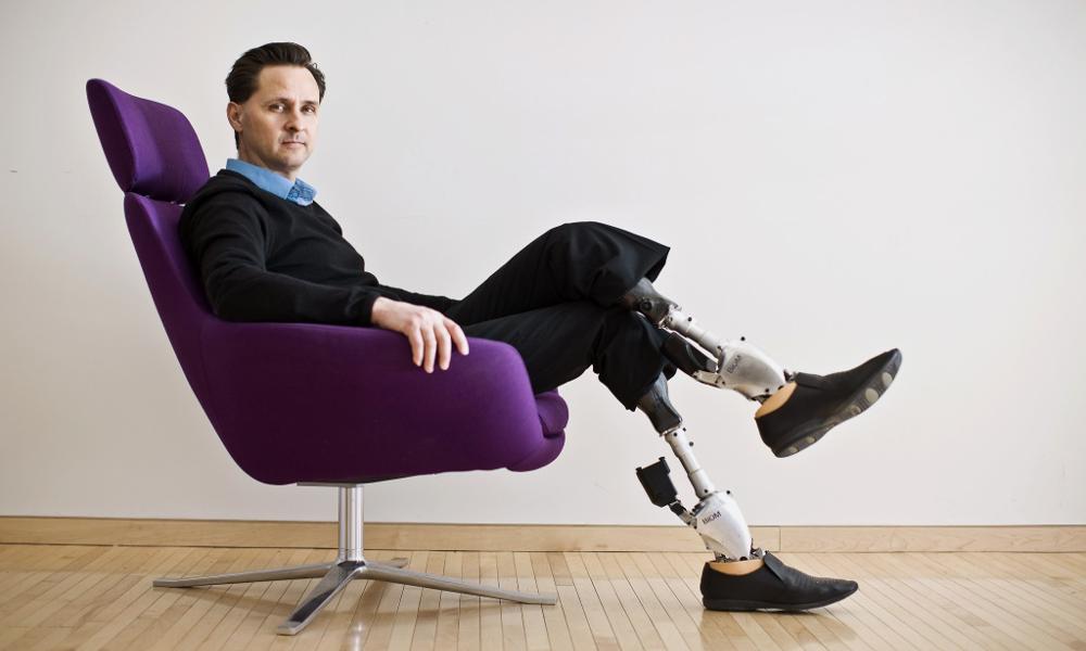 Handicapé, cet Américain a inventé ses propres prothèses bioniques